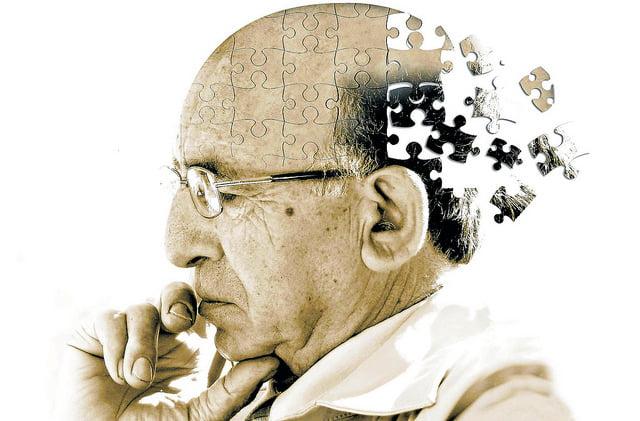 Sudoku contra el alzheimer